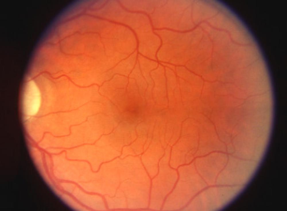 Retina, specchio della tua salute